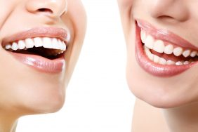 Revamp Your Smile with Porcelain Dental Veneers