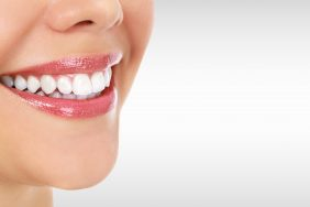 Will Teeth Whitening Work for You?